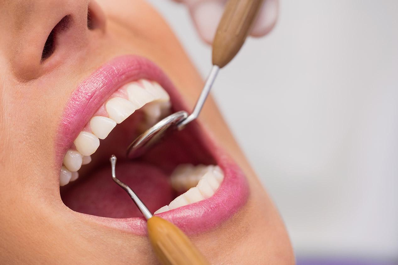 Diş Taşı Temizliği Neden Yapılmalıdır?