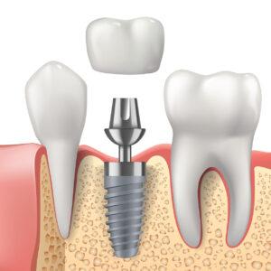 Her hastaya implant uygulanır mı?