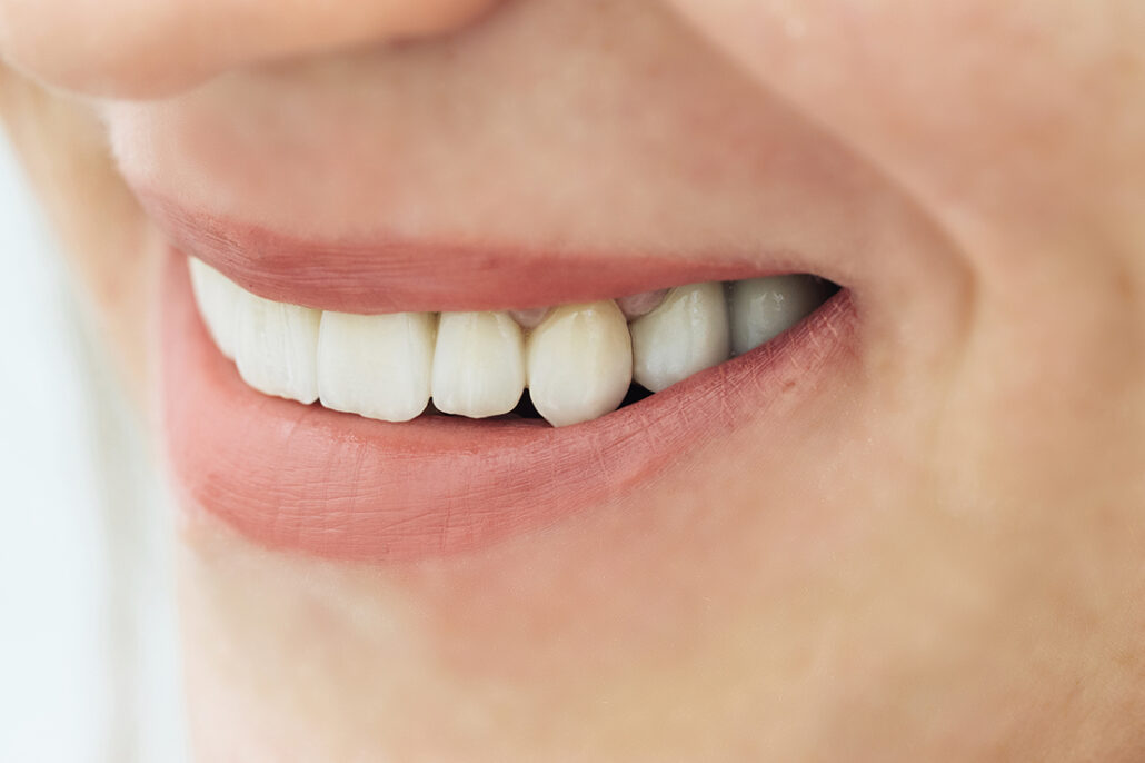 Zirkonyum İle Porselen Diş Arasında Ki Farklar